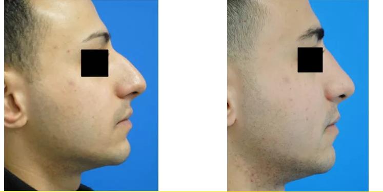 un visage qui a fait de la chirurgie esthetique