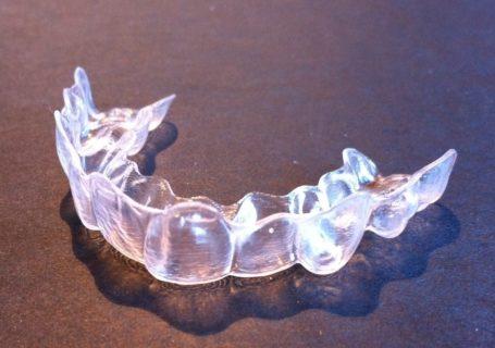 appareil orthodontie