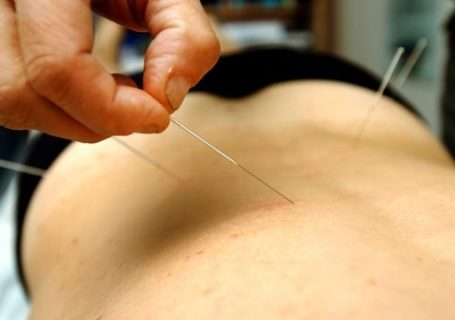 acupuncture à nantes